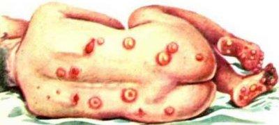 Поздний врожденный сифилис Коллекция изображений