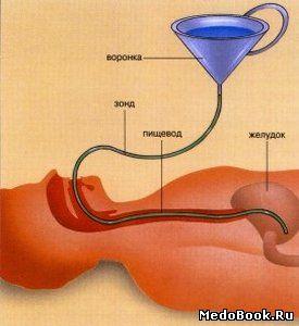 Чем промыть желудок в домашних условиях