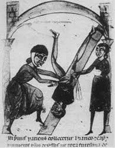 Старинная гравюра с изображением положения Тренделенбурга