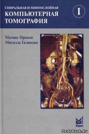 Скачать бесплатно книгу Спиральная и многослойная компьютерная томография: Том 1, Прокоп М., 2008 г.