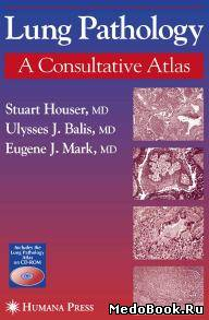 Скачать бесплатно книгу Lung  pathology: A Consultative Atlas, Stuart Houser, Ulysses J. Balis, Eugenej J. Mark, 2005