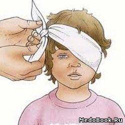 При травме глаза у ребенка рекомендуется наложить повязку на пораженный глаз до прибытия врача